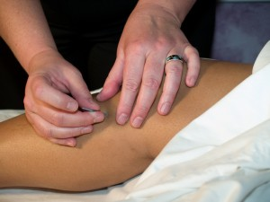 Acupuncture Port Coquitlam